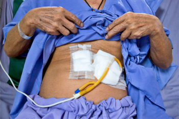 patient shows tube on stomach for feeding food